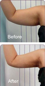 arms-before-and-after