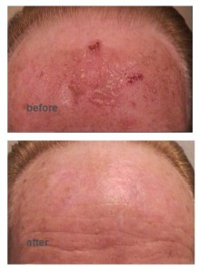 sun damage skin cancer